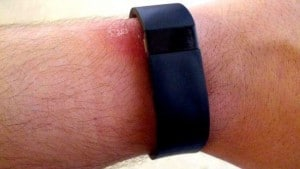 FitBit EMF Radiation - Everything You Need To Know - EMF Academy
